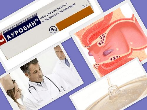 ауробин отзывы при геморрое
