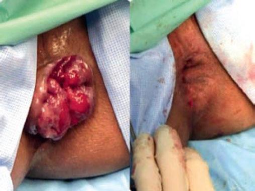 геморрой 4 стадии до и после операции